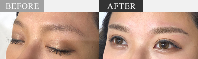 Treatment area / Eyebrows